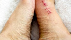 What is Bunions ? What Causes Bunions?