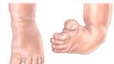 Club Foot Nedir?