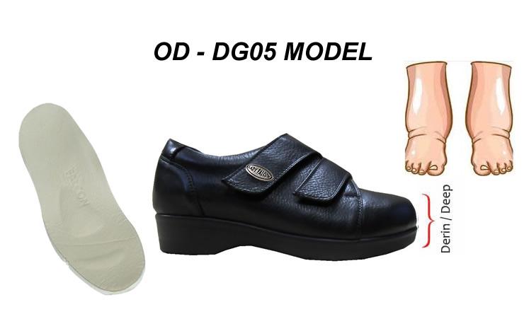 Sürekli Şiş Ayaklar İçin Diyabet Ayakkabısı OD-DG05