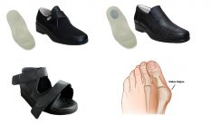 Bayan Halluks Valgus Ayakkabısı